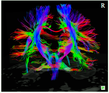 Long Pathway in brain by MRI and DTI